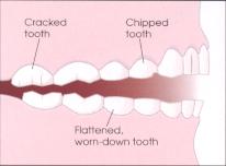 Grinding Clenching Carole Ann Boyd Dds Pc Dallas Dentist