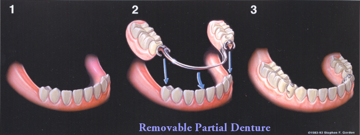 Dentures and partials carole ann boyd dds pc dallas dentist partial denture solutioingenieria Image collections