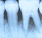 Periodontal bone loss x-ray w-o text