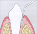 Periodontal probing w-o text