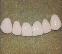 Porcelain veneers laid out